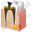 Tooth Dental Caries 2 Icon