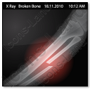X-Ray Bone Broken Icon