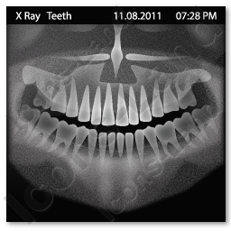 xray of front teeth - photo #1