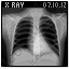 X-Ray Chest Icon