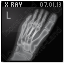X-Ray Foot Icon