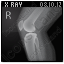 X-Ray Knee Icon